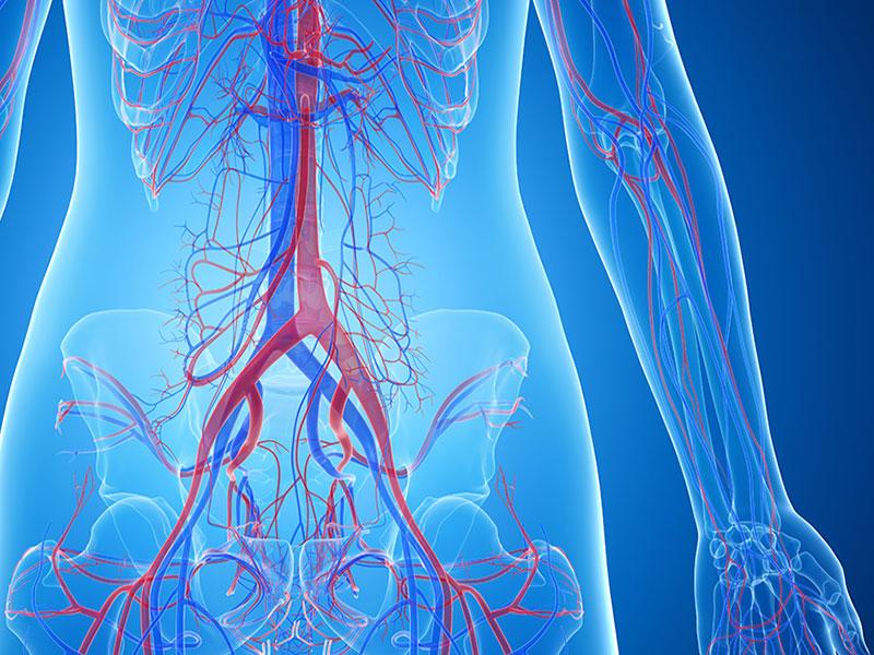 Paradontitis: Folgen in den Arterien