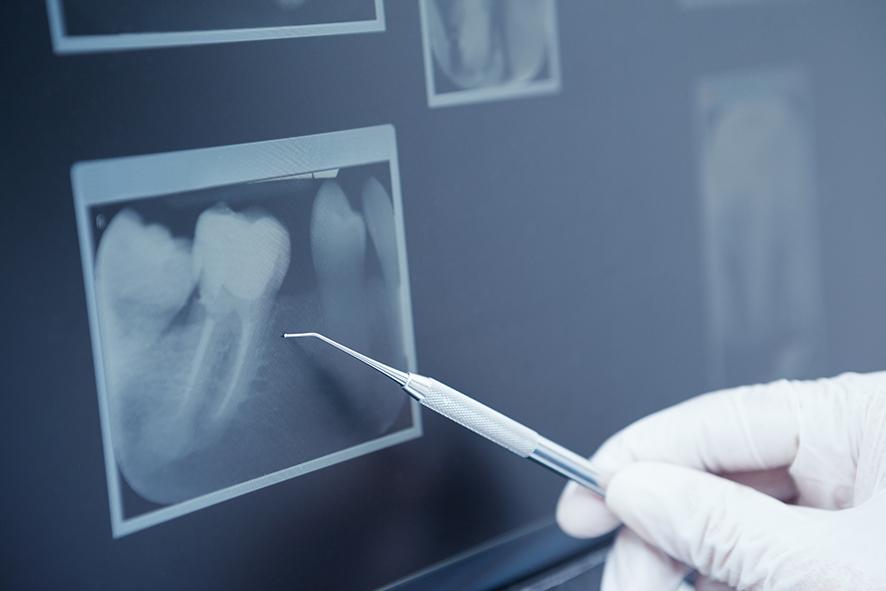 Geschädigter Zahn: Wurzelbehandlung oder Implantat?