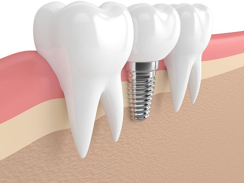 Krankheitsbedingte Zahnlosigkeit: Anspruch auf Implantate!