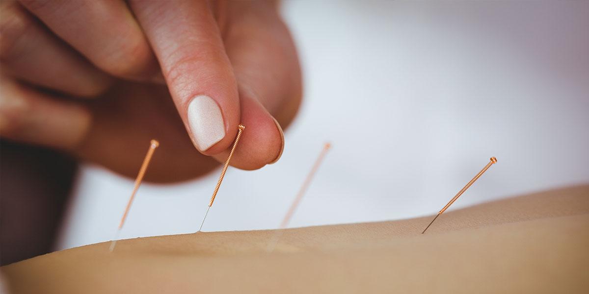 Angst vor der (Zahn)Behandlung: Hilft Akupunktur?