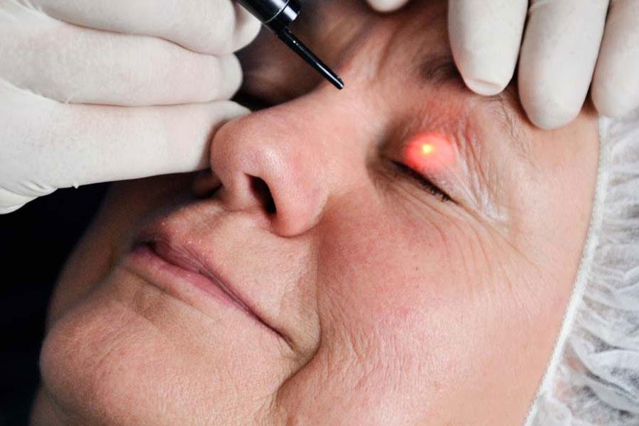 Laserbehandlung für sicht- und fühlbare Hautverjüngung.