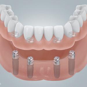 Titan oder Keramik: Welches ist das bessere Implantat?