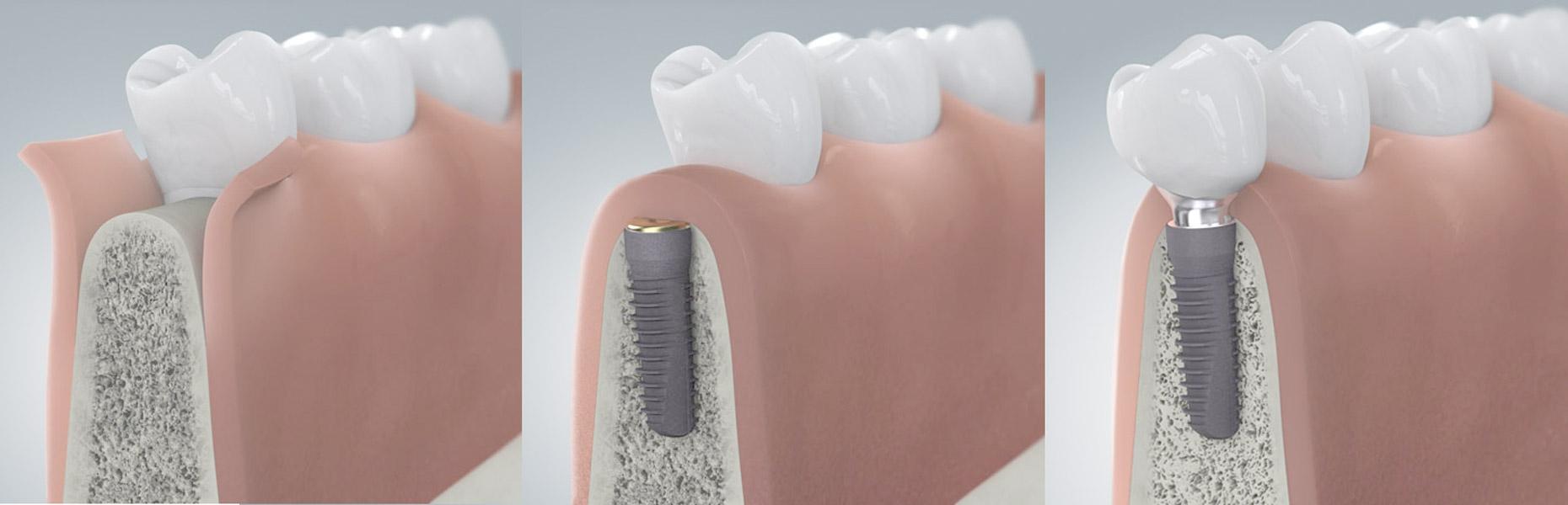 Zähne fehlen